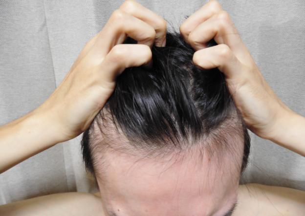 育毛剤を使って産毛が生えた!その理由とは?