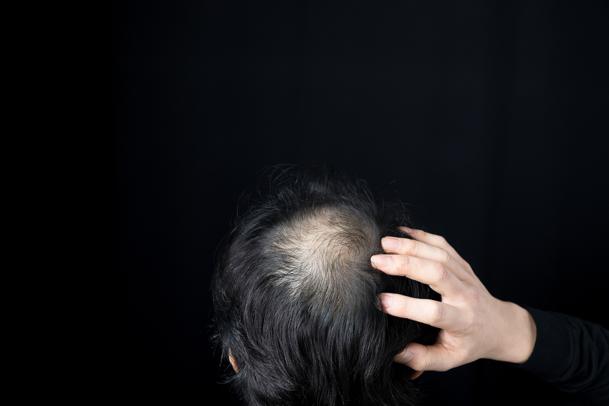 つむじはげに効果があるのは育毛剤だけ?効果的な治し方は?